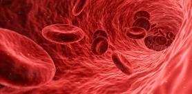 Гипертиреоз - избыток йода в организме