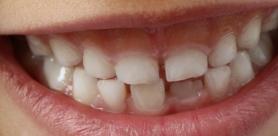 Гипоплазия эмали зубов